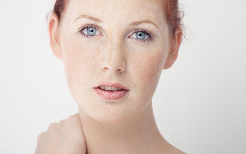 przebarwienia na skórze twarzy kobieta
