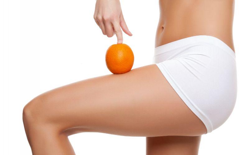 cellulit na skórze skórka pomarańczowa