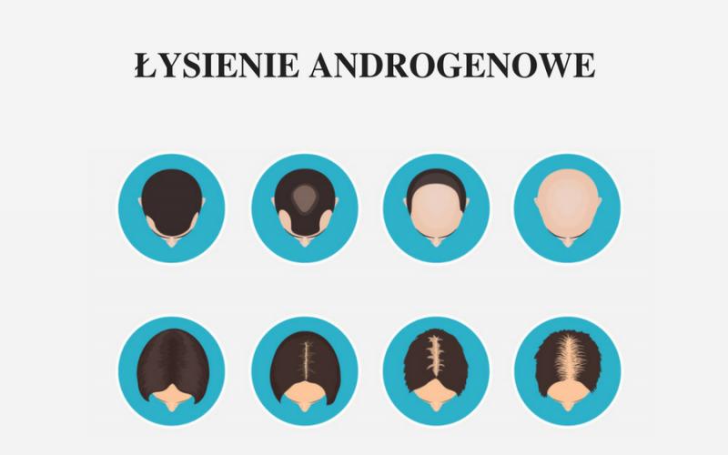 łysienie androgenowe stopnie zaawansowania