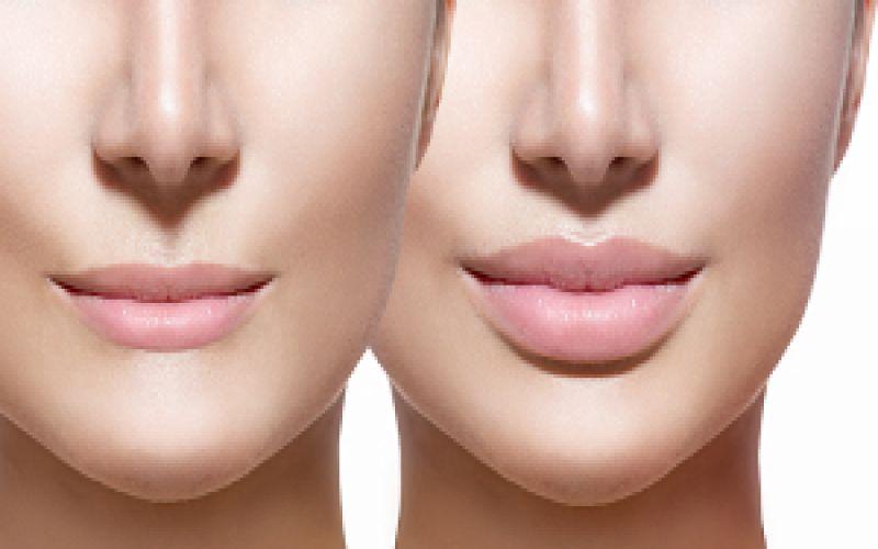 powiększanie ust efekt